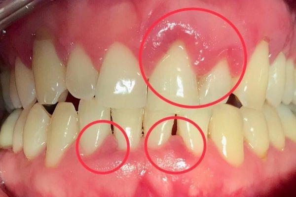 בעיות בשיניים
